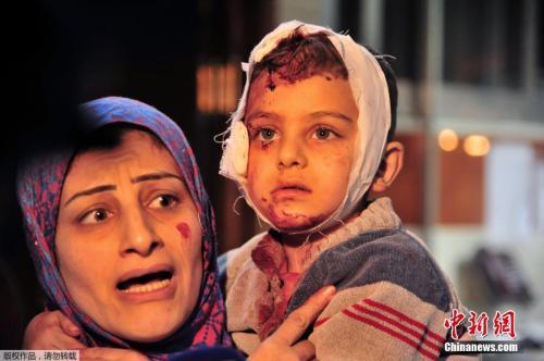 11 战火中的叙利亚母子。