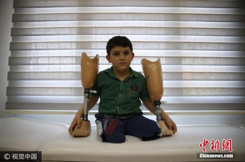 叙利亚10岁儿童空袭中失去双腿。图片来源:视觉中国。