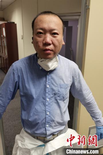 """中国侨网日前,一张李珺结束工作脱下防护服、口罩后满面汗水和勒痕的""""标准照""""迅速传遍南非华人圈,他也一下子成了""""英雄""""。 王曦 摄"""
