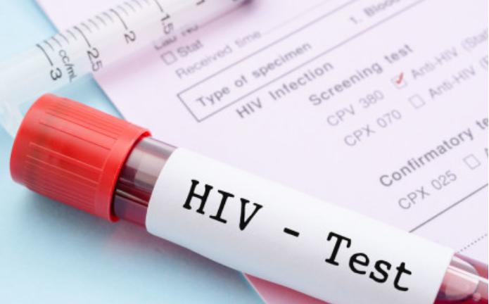 全球135个国家的HIV自检价格将减半